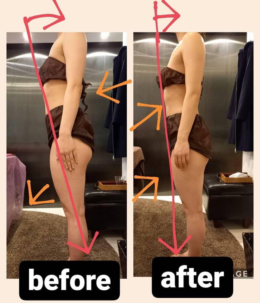反り腰改善 筋膜リリース