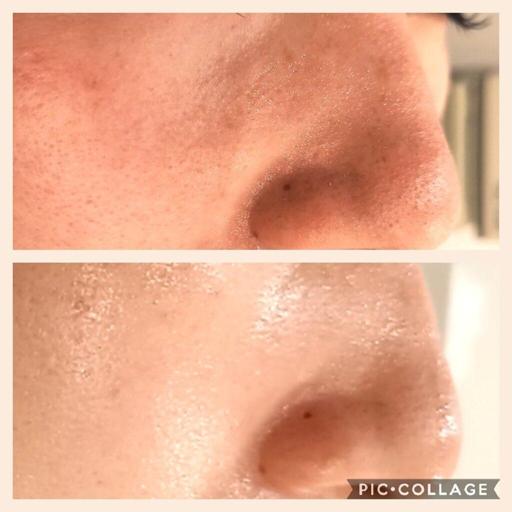 小鼻の黒ずみ 毛穴角栓